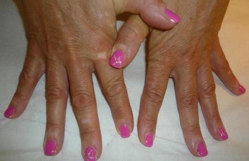 Ricostruzione unghie gel - smalto semipermanente